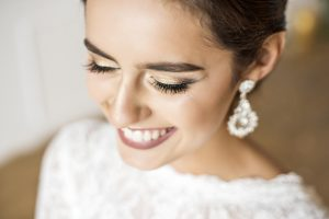 Want to Feel Dazzling On Your Wedding Day? See Your Dentist